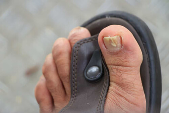 Podiatrists in Livingston, NJ - Fungal Nail Treatment
